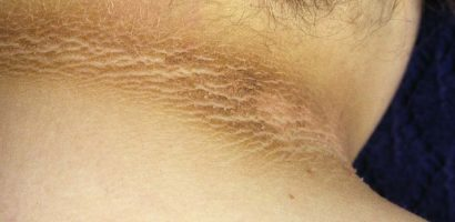 Is eating high levels of sugar the main cause of acanthosis nigricans?