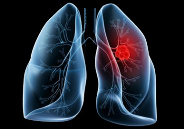 Lung Cancer- what are the Causes and Treatment?