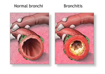 Cure Bronchitis Naturally- few useful Home Remedies