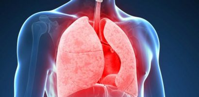 How to control COPD exacerbation- Improve Quality of Life