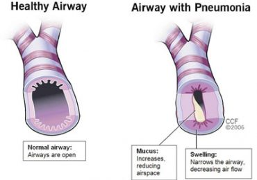 Pneumonia- what are the Causes and Treatment?