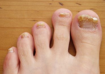 Toenail Fungus – Causes, Treatment and Prevention