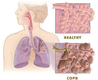What are the Causes of COPD?