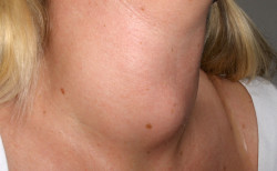 Goiter – What foods should you avoid?